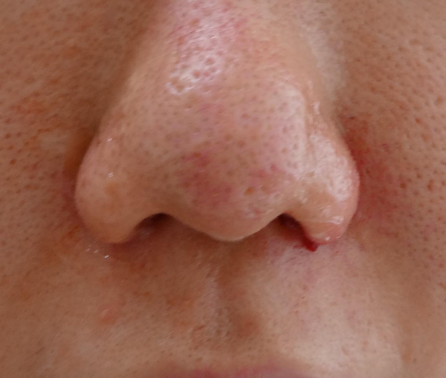 鼻翼(いわゆる小鼻)挙上術はあぐら鼻には効果的 - ドクター森川ブログ